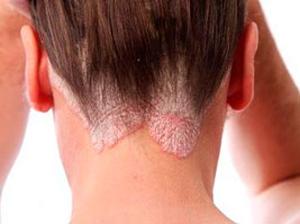 себорея волосистой части головы фото